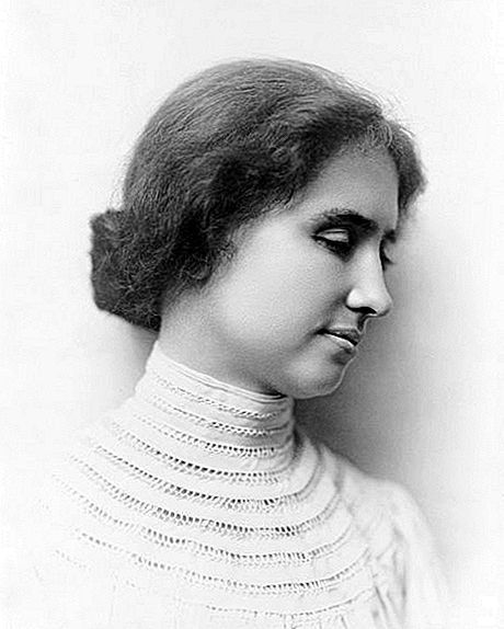 Helen Keller was Not Born Blind of Deaf